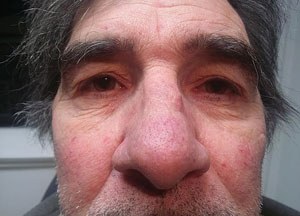 Seeing Red How Ocular Rosacea Impacts The Cornea