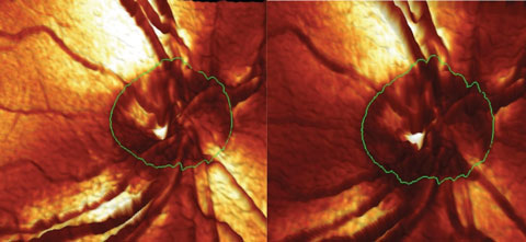 Fig. 1. This image shows the contours of the right optic nerve. Note the change in the neuroretinal rim in the inferotemporal aspect between the baseline (left) and the conversion image (right).