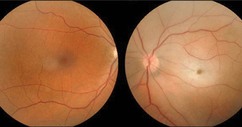 This patient presented to the ED with vision loss in the right eye.