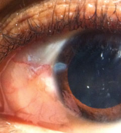 This 27-year-old patient presented with ocular discharge. He says his eyes became red following a cold. Can you explain what's causing his symptoms?
