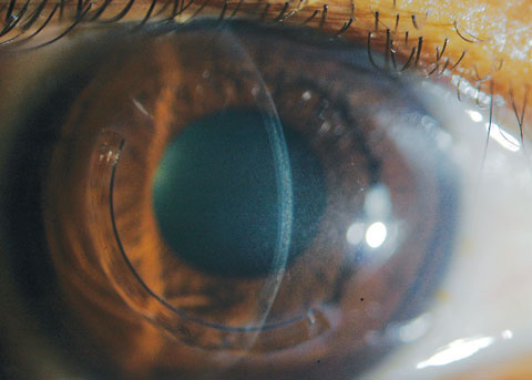 A slit beam shows the demarcation lines, which are a potential indicator of CXL treatment depth in a patient who received off-label treatment of CXL and an Intacs corneal implant (AJL Ophthalmic).