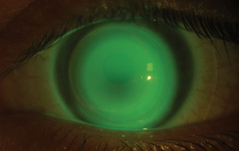 This patient was successfully fit in a hybrid contact lens after standard epithelium-off CXL.