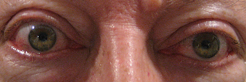 This patient exhibits proptosis from thyroid orbitopathy. Photo: Michael Trottini, OD