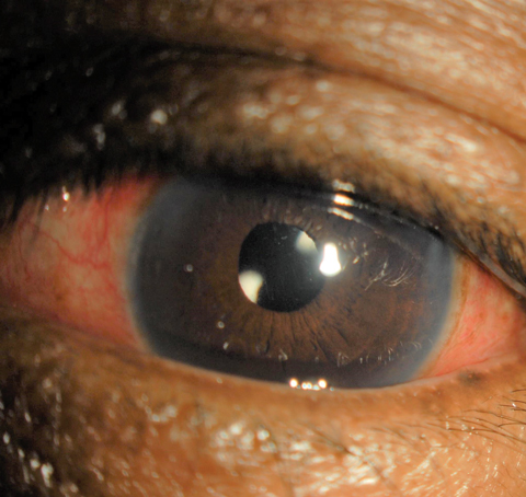 This one-day postoperative cataract surgery patient displays redness indicating inflammation, similar to the inflammation laser procedure patients face.