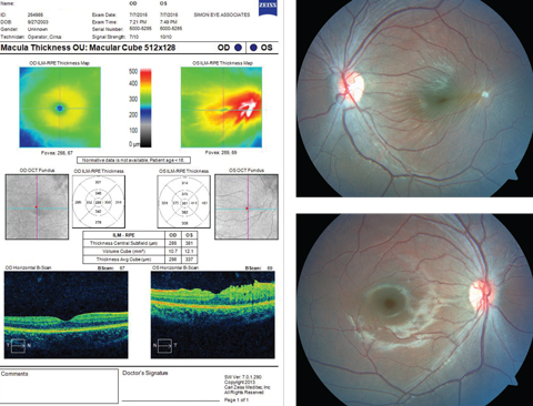 This 11-year-old patient appeared for his first eye exam with blurry vision in his left eye, shown in the bottom fundus image. Can you identify the cause?