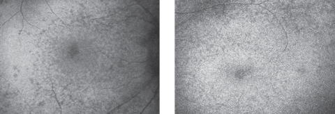 Fig. 2. Autofluorescence of the right (at left) and left maculae.