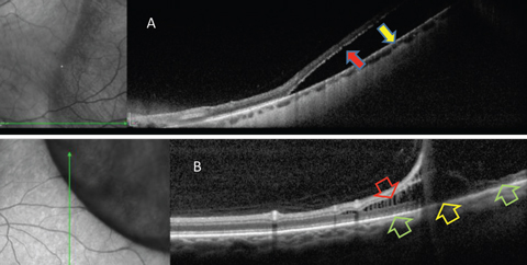 Fig. 4. OCT is helpful in differentiating RRD from retinoschisis. (A) Neurosensory retina is separated from RPE in RRD. This patient requires surgical intervention. (B) In retinoschisis, separation and spilling of neurosensory is seen. Normal apposition of the outer retina to RPE is seen (green arrows) on either side of the outer retinal break (yellow arrow). This patient may be closely monitored.
