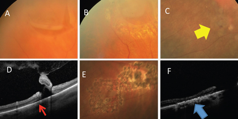 Fig. 5. (A) Horseshoe retinal tear is well bordered by laser (B). (C) Retinal breaks (yellow arrow) with (D) associated subretinal fluid (red arrow) well bordered by (E) laser. (F) Alteration of the RPE resulting in a watertight tissue (blue arrow).