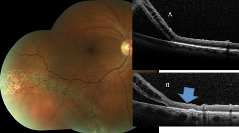 Fig. 6. This asymptomatic patient with subclinical RRD not involving the macula is effectively treated by laser bordering. The alteration of the outer retina-RPE junction can be noted when the pretreatment OCT (A) is compared to the posttreatment scan (B) (blue arrow).