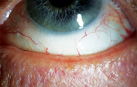 "This 65-year-old woman presented with frequent dryness and irritation, and she reported a ""dry eye diagnosis"" from a previous practitioner. A closer look at her lid margin suggests blepharitis is at play here as well."