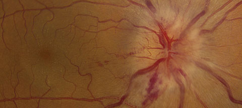This patient displays optic nerve swelling and a neurosensory retinal detachment in the right eye.