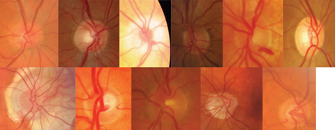 Optic nerves come in all shapes and sizes, making the ISNT rule tough to follow. Can you tell which are normal, anomalous but non-glaucomatous and glaucomatous? Photos: Jarett Mazzarella, OD