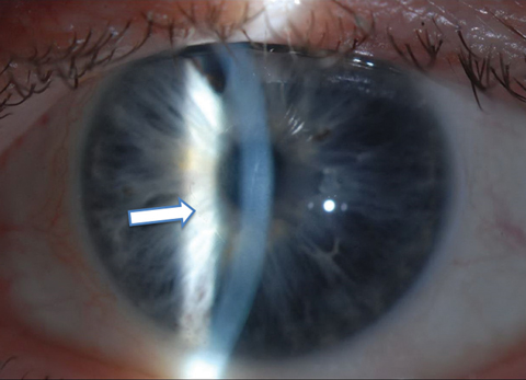 One month postoperative appearance following 4mm Descemet's stripping without endothelial keratoplasty in a 64-year-old man with Fuchs' dystrophy. The arrow highlights the edge of the descemetorhexis.
