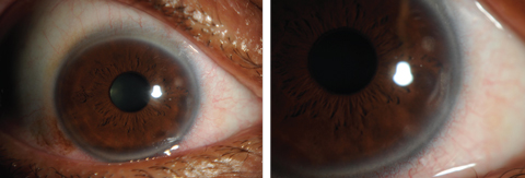 Figs. 7 and 8. Contact lens-induced peripheral corneal infiltrates.