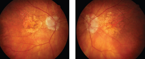 Fig. 2. Advanced atrophic AMD may masquerade as angioid streaks.