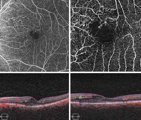 These OCT-A scans show our patient's macula in great detail.