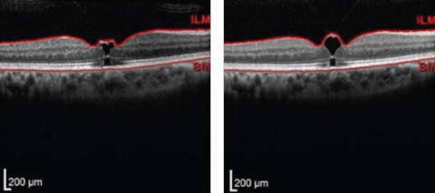 Fig. 2. Upon referral, the initial OCT scan (left) showed VMT and early macular hole formation, but vision was stable. Follow-up one month later (right) showed slight worsening. Patient was educated of recommendation for vitrectomy if FTMH develops.