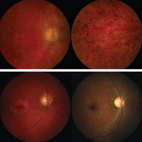 Fig. 5. The top panel shows fundus photos of retinitis pigmentosa. The bottom panel shows fundus images of cone-rod dystrophy (left) and Stargardt disease (right).