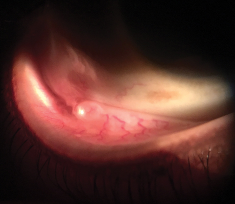 A 55-year-old patient presented urgently with a foreign body sensation in his right eye. Can this image help explain his issue?