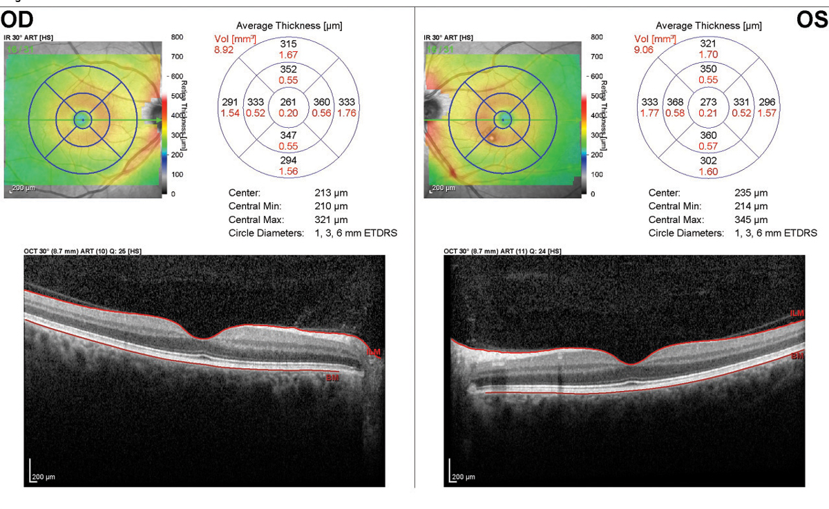 This SD-OCT of a patient taking 400mg of Plaquenil daily shows no signs of maculopathy, as each eye's inner/outer segment line is intact.