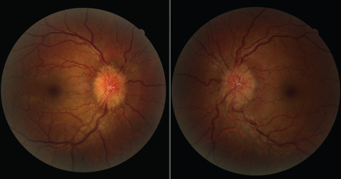 Six weeks after starting isotretinoin for the treatment of acne, this patient with increased intracranial hypertension presented with bilateral optic disc edema.