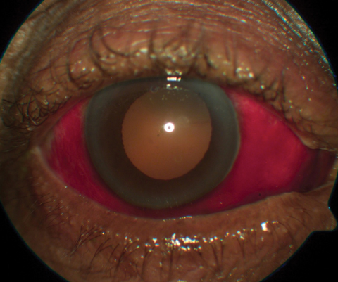 This patient being anti-coagulated with warfarin presented with subconjunctival hemorrhage.