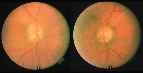 This patient's toxic optic neuropathy is due to amiodarone use.