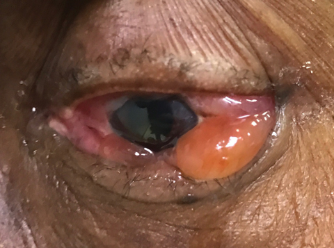 This patient presented two days after bisphosphonate infusion with severe ocular inflammation.