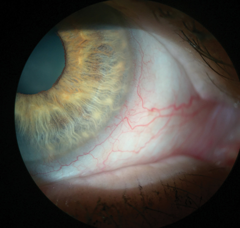This patient's injected blood vessels indicate inflammation. In this eye, it can be seen without any vital dyes.