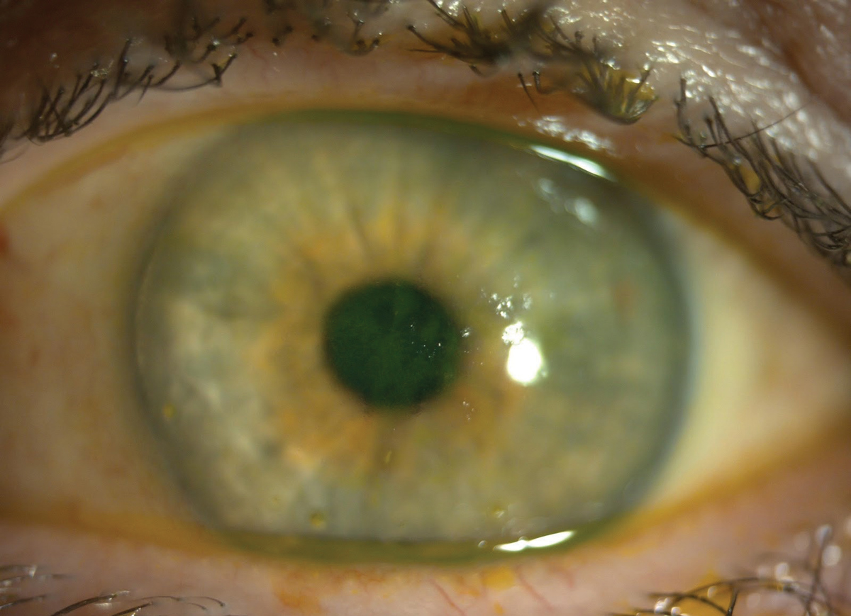 This patient with both SS and lupus has central fluorescein staining. The central coalesced superficial punctate keratitis is causing decreased vision and discomfort.