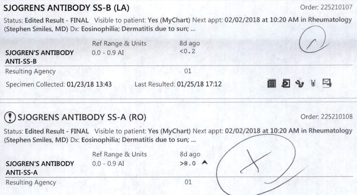 These lab results for a patient sent for Sjögren's bloodwork are postitive for SS-B and SS-A antibodies.