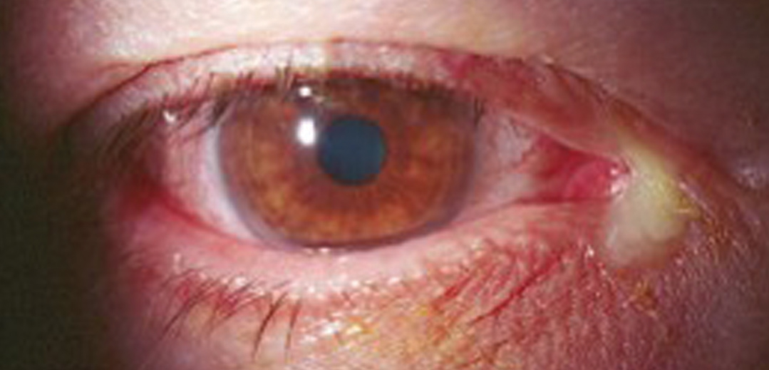 Using 1.0% or 0.25% povidone-iodine can be effective against cases of bacterial conjunctivitis, shown here.