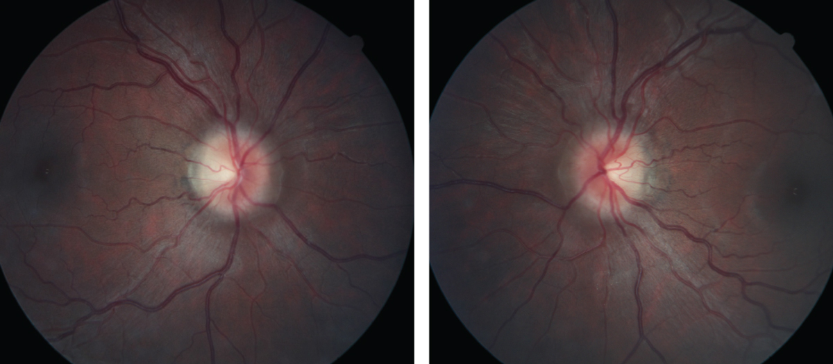 "Figs. 1 and 2. At left, the patient's right fundus as it appeared on her initial, urgent presentation. At right, her left eye, also at initial presentation. Note the ""C"" shaped halo shadowing in both the right and left eyes, with the temporal neuroretinal rim essentially intact."