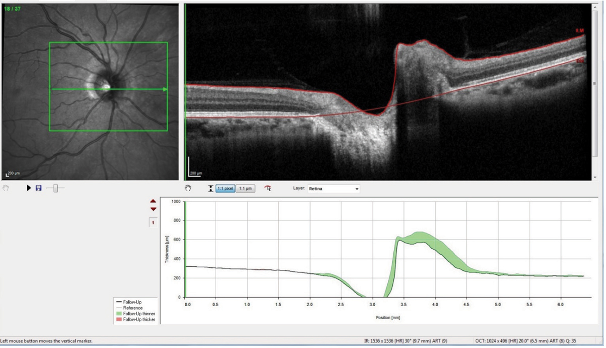 Fig. 4. This optic nerve raster OCT scan is a follow-up showing significant reduction in the nasal neuroretinal rim swelling, as evidenced by the green areas in the change analysis.
