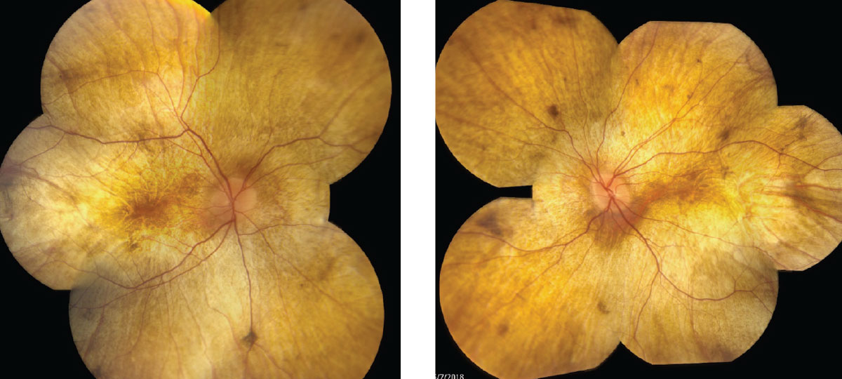 Fig. 1. Fundus photos show our 34-year-old patient's right, at left, and left eyes.