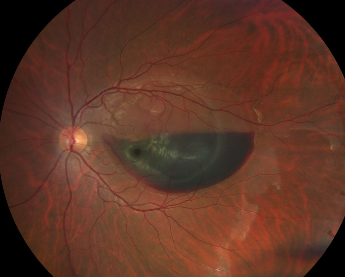 Fig. 1. A view of the macula and posterior pole of the left eye of our patient. How would you characterize the hemorrhage?