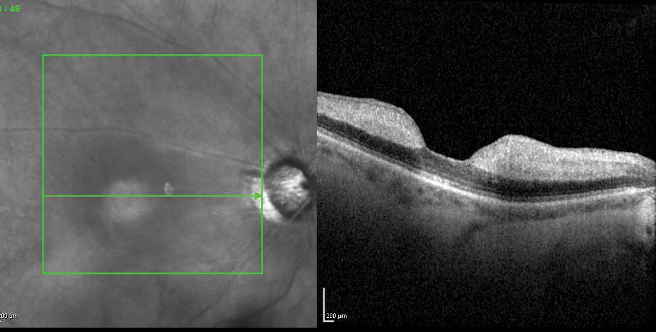 Fig. 1. OCT is an invaluable diagnostic tool to assess possible retinal thickening, as seen here in another acute CRAO patient.
