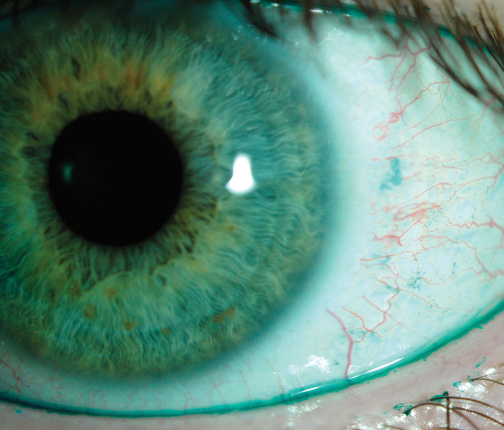 This positive lissamine green conjunctival staining indicates dry eye, whereas the lid margin staining is indicative of lid wiper epitheliopathy. Cyclosporine drugs offer these kinds of patients relief. Photo by Jalaiah Varikooty.