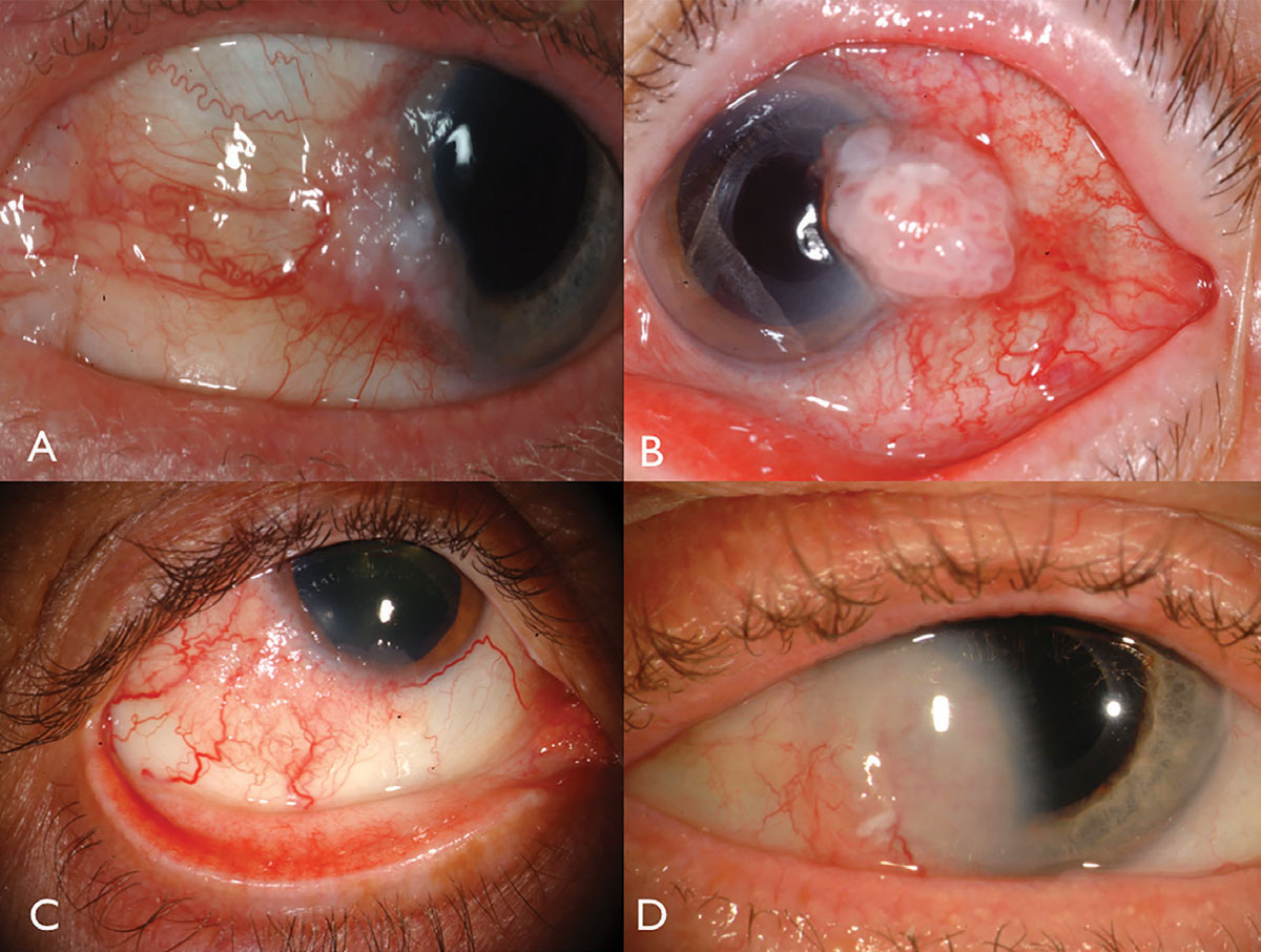 Fig. 1. Limbal OSSN: with leukoplakia and corneal involvement (A), with prominent intrinsic vascularity and feeder vessels (B), in a HIV patient (C), and with deep corneal invasion requiring resection and plaque radiotherapy (D).