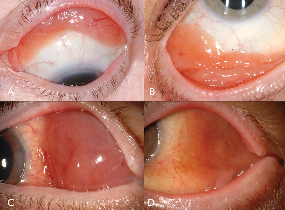 Fig. 2. Conjunctival lymphoma can be salmon-pink (A) or multilobulated forniceal (B). Medial forniceal conjunctival lymphoma before (C) and after (D) ritiximab.