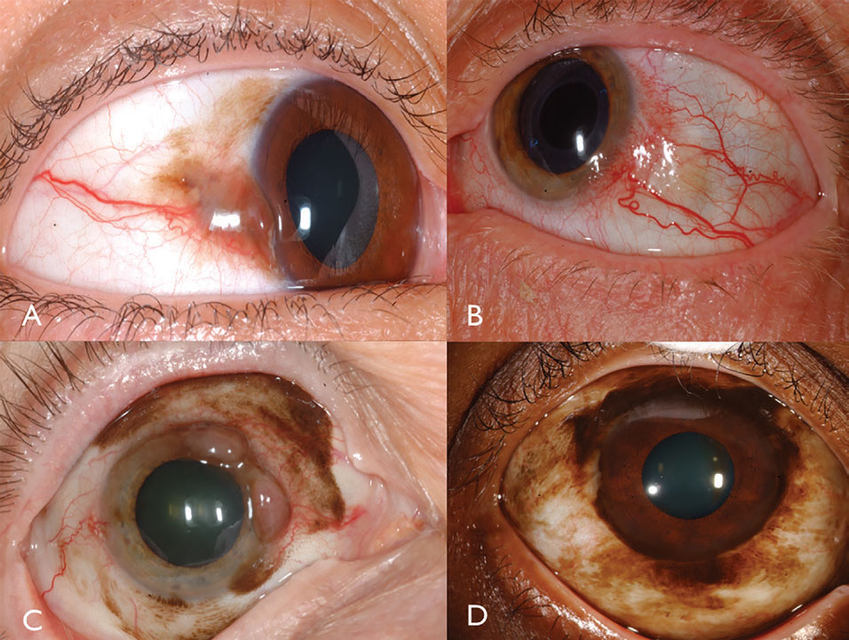 Fig. 3. Pigmented conjunctival melanoma can arise from PAM (A). Non-pigmented conjunctival melanoma may have intense vascularity (B). PAM could also cause mixed pigmented/non-pigmented conjunctival melanoma (C). PAM caused limbal melanoma in this African-American patient (D).