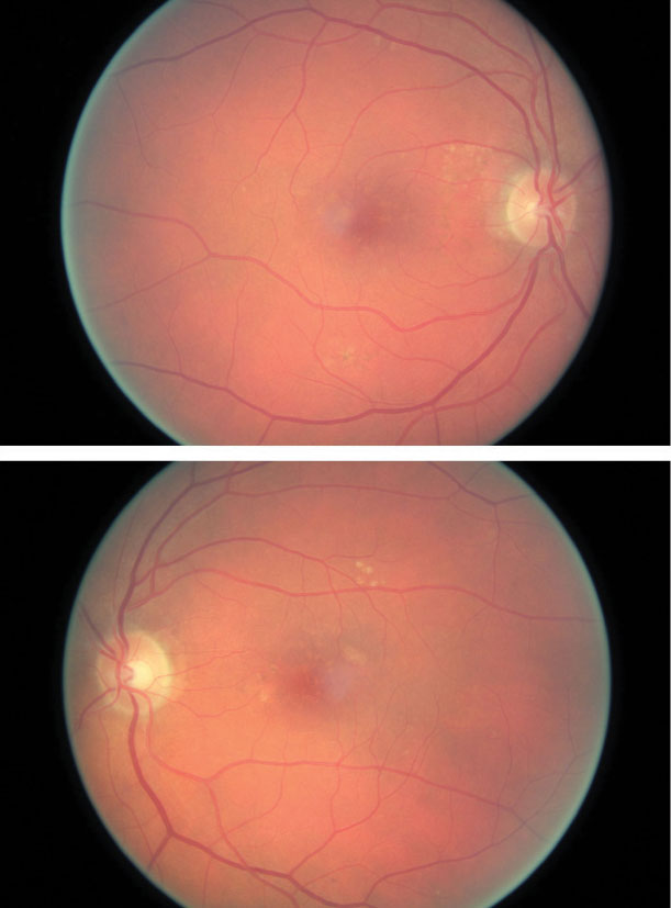 The patient's color photography shows drusen with mild RPE changes in both eyes with mild macular thickening beginning in the left eye (bottom) that coincides with subretinal fluid identified with OCT.
