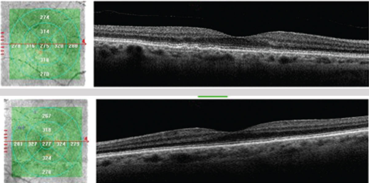 The patient's OCT shows more prominent central drusen OD (top) compared with OS (bottom); however, small drusen are definitively present OU. The OCT confirms no macular atrophy or increased thickness for concern of CNVM at this time.