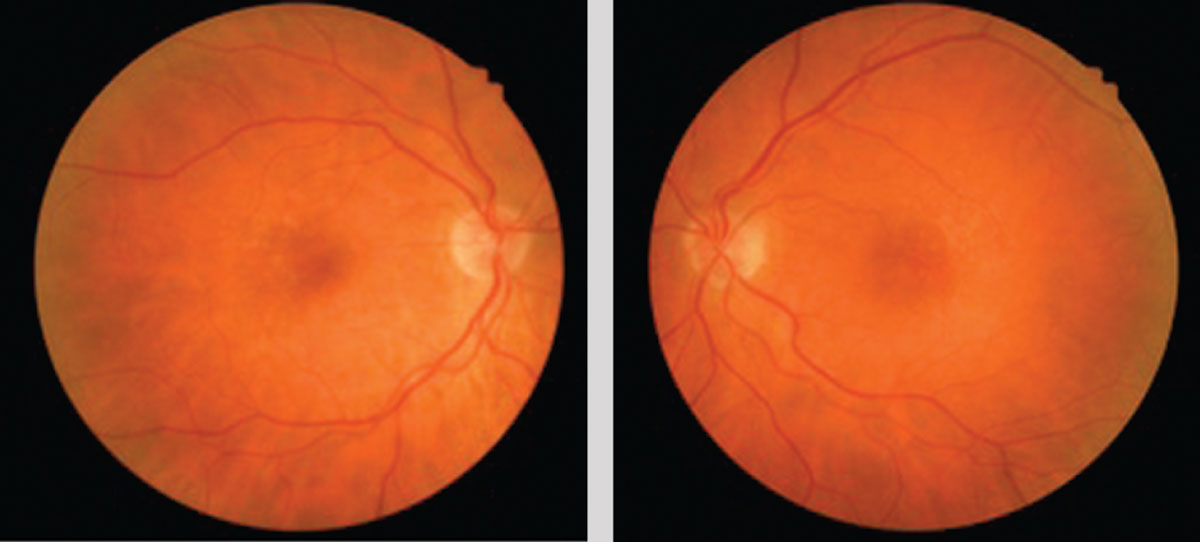 The patient's macular color photographs show small hard, deep, drusen that is overall symmetric in both eyes.