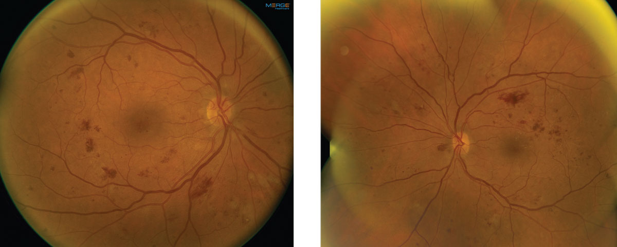Fig. 1. These fundus images show the right and left eye of our patient. Note the extent of involvement.