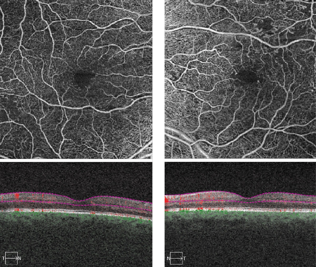 Fig. 2. These OCT-A images represent 6x6mm of the right and left eyes. Note the changes within each macula.