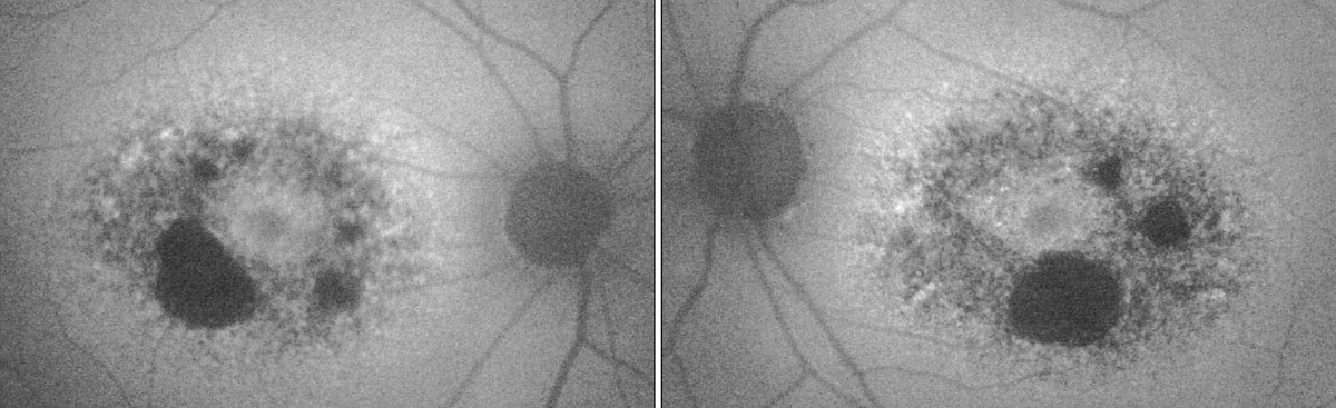 Fig. 2. In the patient's fundus autofluorescence, the dark areas show RPE atrophy, while the surrounding areas of hyper-fluorescence indicate lipofuscin deposits.