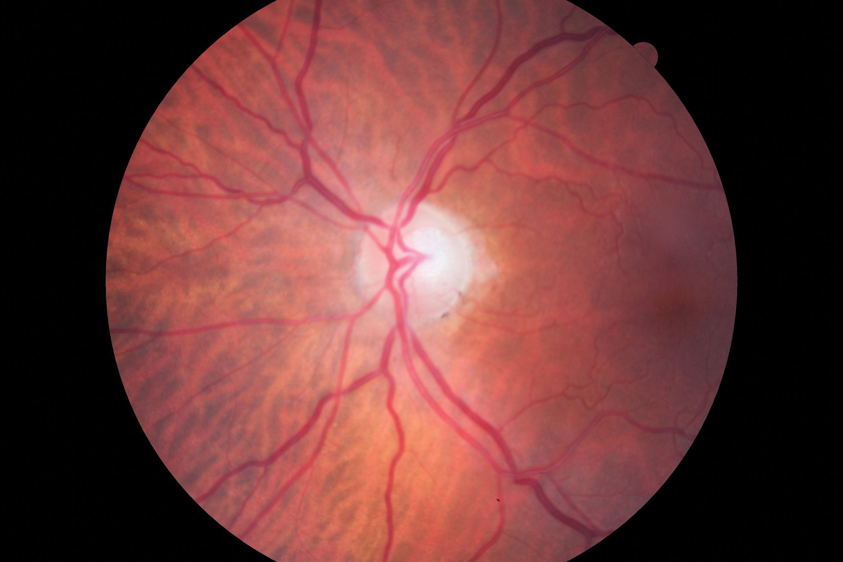 Fig. 1. Visible in this patient's optic disc is a temporal pallor with numerous arterial constrictions and a/v nicking.