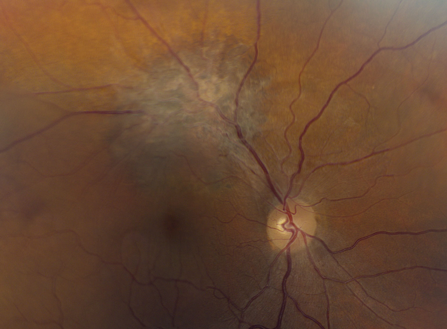 Fig. 1. A widefield view of the right eye of our patient.