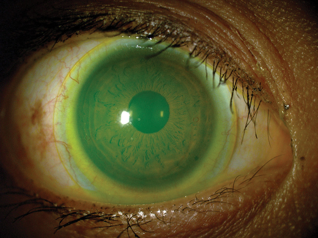 A specialty lens, such as this mini-scleral, may be a good option for your patient with high corneal astigmatism—and one only you can prescribe.